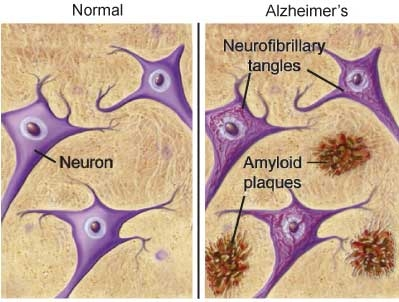 Amyloid Plaque